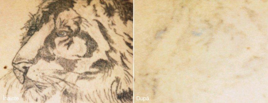 Stergerea tatuajului