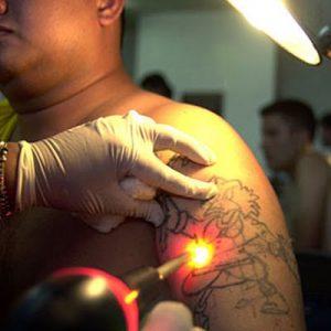 Imagini pentru cat costa sa scoti un tatuaj